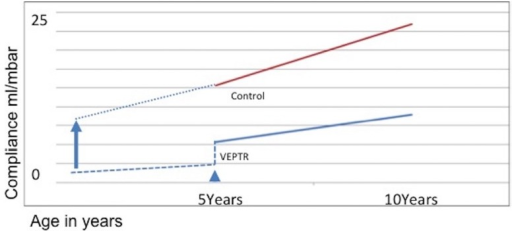 Development of thoracic compliance during growth. The vertical expandable prosthetic titanium ribs (VEPTR) group showed a lower thoracic compliance than the control group at the beginning of treatment and at the end of treatment. Increase rate of thoracic compliance during growth did not show any statistically significant differences. Assuming that treatment would begin earlier, the same increase rate of thoracic compliance during growth could lead to a 'normal' thoracic compliance at the end of treatment. The arrow head indicates start of treatment (mean age in this study). The dotted line at the left of the arrow head indicates assumed thoracic compliance before treatment. The arrow indicates the theoretical start of treatment as early as possible. The dotted line right to the head of the arrow indicates theoretical thoracic compliance of patients whose treatment started as early as possible. VEPTR, thoracic compliance of VEPTR group; Control, thoracic compliance of healthy control group.