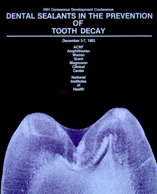 <p>The crown of a tooth.</p>