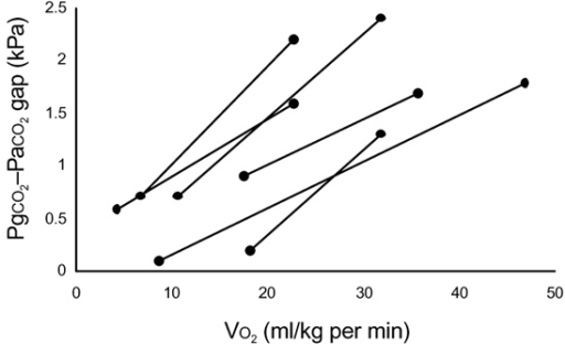 Gastric-arterial CO2 (PgCO2-PaCO2) gap before and after exercise to high oxygen consumption (VO2). Data from Chieverley-Williams S, Hurley R, Cox M, McCorkell S, Grocott MPW, Goldstone J and Mythen MG (unpublished data).