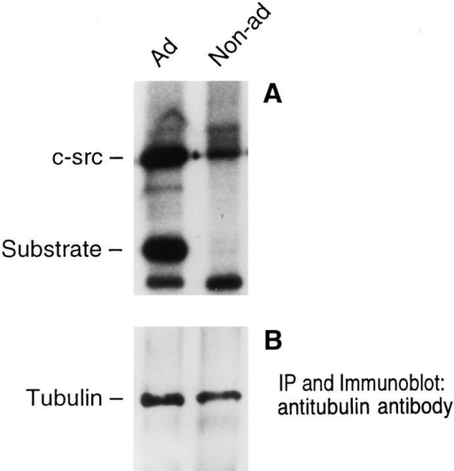 Tyrosine kinase activity of tubulin-associated c-src.  One half of avian marrow macrophages maintained nonadherent  for 2 d were plated on tissue culture plastic while the other half  continued in suspension. After 90 min, the cells were lysed, and  the lysate was immunoprecipitated with antitubulin antibody.  One half the immunoprecipitate (A) was assayed for kinase activity by measuring 32P incorporation into c-src and enolase (an exogenous substrate). Tubulin content of the remaining immunoprecipitate was determined by immunoblot (B).