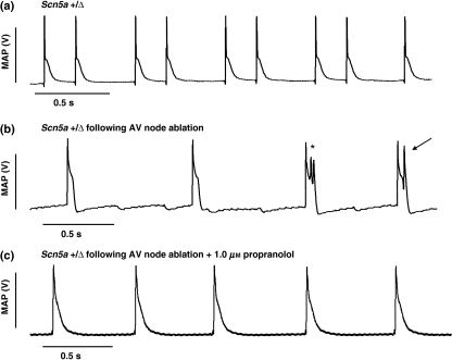 Representative monophasic action potential (MAP) recording obtained from the epicardial surface of a spontaneously-beating Scn5a+/Δ heart under physiological conditions (a). Following induction of complete atrioventricular (AV) block by crush ablation of the AV node, multiple early afterdepolarizations (*) are seen, along with an associated triggered action potential (arrow) (b). All such features are suppressed following perfusion with physiological buffer solution containing propranolol (1 μm) (c).