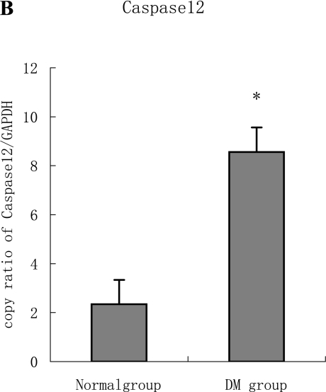 A, B: The expression of both Grp78 and Caspase12 mRNA in the diabetic heart increased significantly compared to the normal heart tissue. Furthermore, the two targets were regulated in the same manner at mRNA level, which are statistically significant difference (p<0.05).