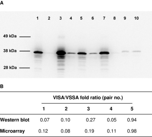 Western blot analysis of protein A production. Analysis of protein A production by Western Blot in hVISA/VISA and VSSA pairs. A. Pair 1 (lane 1, JKD 6000; lane 2, JKD 6001), pair 2 (lane 3, JKD 6009; lane 4, JKD 6008), pair 3 (lane 5, JKD 6021; lane 6, JKD 6023), pair 4 (lane 7, JKD 6052, lane 8, JKD 6051), pair 5 (lane 9, JKD 6004; lane 10, JKD 6005). B. Fold ratios for protein A production and protein A (spa) gene expression for 5 hVISA/VISA and VSSA pairs.