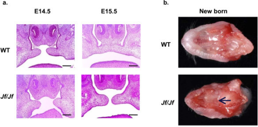 Cleft palate phenotype. a. Coronal sections through the palate of E14.5 (before the fusion) and E15.5 (after the fusion) wild-type (WT) and homozygote (Jf/Jf) embryos, haematoxylin-eosin stained. Scale bars 200 μm. b. Cross-sections of heads showing secondary palate of a wild-type (WT) newborn mouse with fused palate and a homozygote (Jf/Jf) newborn mouse with a cleft (arrow).