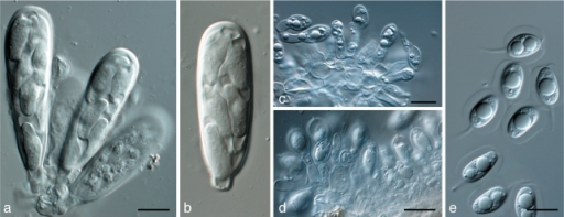 Phyllosticta capitalensis. a, b. Asci with ascospores; c, d. conidiogenous cells giving rise to conidia; e. conidia (all: CBS H-20522 epitype). — Scale bars = 10 μm.