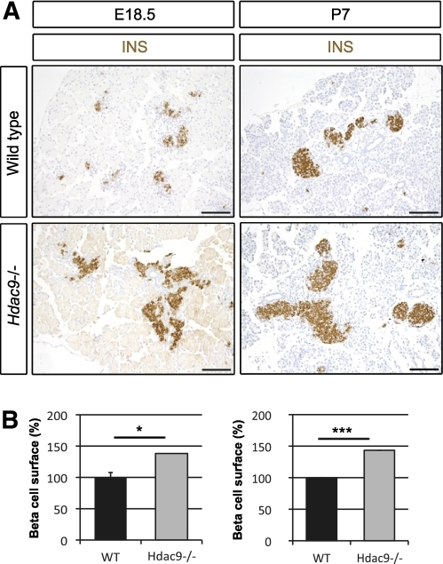 HDAC9 loss-of-function enhances β-cell mass. A: Immunohistological analyses of wild-type and Hdac9−/− pancreas at E18.5 and P7. β-Cells were detected with insulin (INS) staining (brown). B: Morphometric analysis of the β-cell surface by quantification of areas occupied by insulin-positive cells. β-Cell surfaces were normalized to wild-type (WT) values (100%). Data are shown as means ± SEM. At E18.5, we analyzed five WT and four Hdac9−/− pancreata. At P7, we analyzed four WT and three Hdac9−/− pancreata. *P < 0.05; ***P < 0.001. Scale bar, 100 μm. (A high-quality digital representation of this figure is available in the online issue.)
