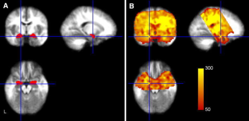 a Amygdalae from the Harvard–Oxford subcortical atlas. b Temporal SNR map from a representative subject for the area of the fMRI acquisition volume. Shown tSNR values range from 50 to 300. Crosshair lines are positioned at −18, −5, −17 in MNI space. Note that tSNR in the medial part of the amygdala is lower than in the lateral region due to through-slice dephasing