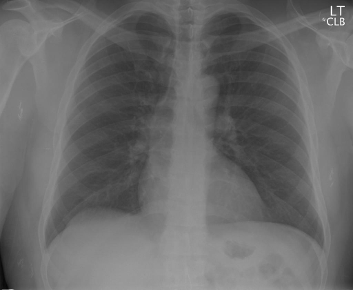 PA and lateral chest radiograph (2 views) (2 images)