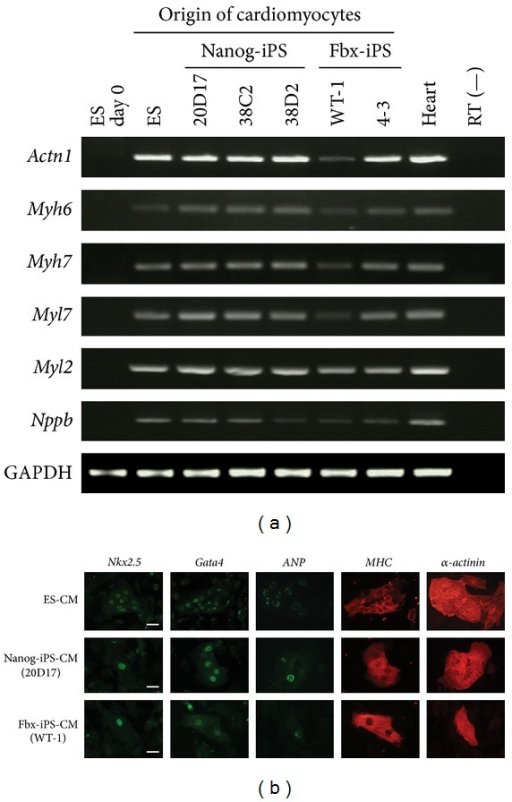 Cardiomyocyte (CM) specific gene expression profiles, as determined by RT-PCR and immunostaining, of CM derived from mouse embryonic stem (ES) cells, Nanog induced pluripotent stem (iPS) cells, and Fbx15-iPS cells. (a) CM-associated structural protein gene expression profiles. The expression of Actn1, Myh6, Myh7, Myl7, Myl2, and Nppb was analyzed by semiquantitative RT-PCR analysis. GAPDH was used as an internal control. (b) Immunofluorescent staining of typical CM-specific proteins on day 15 of differentiation in CM derived from ES, Nanog-iPS, and Fbx15-iPS cells. Cells were stained with Nkx2.5 (green), GATA4 (green), atrial natriuretic peptide (ANP; green), myosin heavy chain (MHC; red), and α-actinin (red). Scale bar = 50 μm.