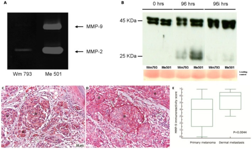 Different expression of MMP-9 in primary and metastatic melanoma.(A) Detection of MMP-2 and MMP-9 activity in the culture media of WM793 and Me501 cells by zymographic assay. The arrows point to the areas of degradation of the gelatine matrix produced by the indicated proteases (B) Western blot analysis showing degradation over time of IGFBP-3 by melanoma-produced proteases. Human recombinant IGFBP-3 was incubated for the indicated times with the culture media of the primary melanoma line WM793 or of the metastatic line Me501, in the absence (96 hrs) or in the presence (96i hrs) of protease inhibitors. A Red Ponceau staining of the original gel is shown on the bottom as the loading control. (C,D) MMP-9 immunostaining of primary (C) and metastatic (D) melanoma. Asterisks indicate melanocytes nests and the arrows indicate stromal cells. Original magnification, X100. (E) Comparison of the MMP-9 reactivity score of primary and metastatic melanoma. Central boxes represent values from lower to upper quartile (25th–75th percentile). Middle lines represent median. Vertical lines extend from minimum to maximum value. P value was calculated by Mann-Whitney U test. The reactive cells were counted, and the scores determined, as described in Fig. 1 and in the Methods section.