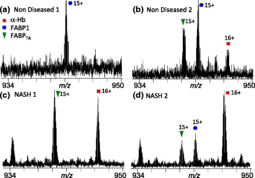 Expanded m/z regions from the full scan mass spectra obtained following LESA MS analysis of two healthy human liver sections (a) and (b), and two NASH human liver sections (c) and (d). Labeled peaks are FABP1 (+16 charge state) (blue circle), FABP1TA (+16 charge state) (green triangle), and α-Hb (+16 charge state) (red square)