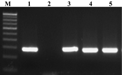 PCR amplification of invA gene. Lane M: 100 bp DNA Ladder (Genei TM, Merck Bangalore) Lane 1: Positive control (ATCC 14028) Lane 2: Negative control Lanes 3-5: Samples positive for Salmonella spp.