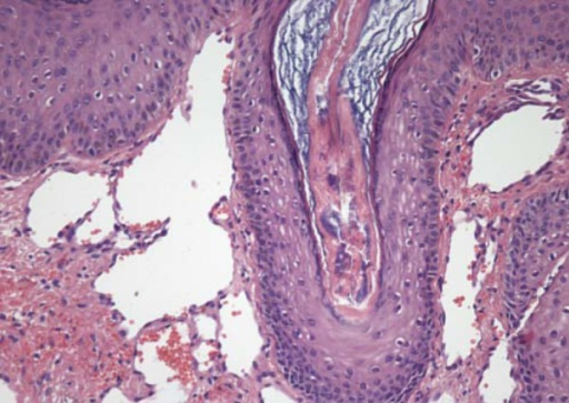 200x. Detail of dilated vessels in the superficial dermis simulatingangiokeratoma
