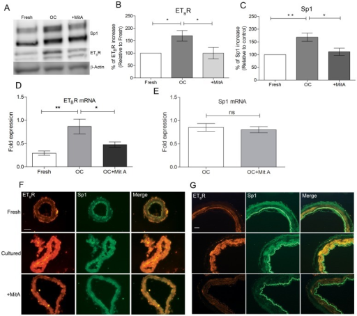 Inhibition of transcription factor Sp1 blocks ETBR upregulation ex vivo in rat and human cerebral arteries.A. Representative western blot for Sp1 and ETBR protein levels in cultured cerebral arteries with and without 5 µM MitA at 24 hrs. B and C. Bar graphs show the statistical significance of protein expression and inhibition of Sp1 and ETBR in figure 2A (Fresh n = 7, OC n = 7, MitA n = 6, **P<0.01, *P<0.05). D and E. Quantitative PCR analysis of ETBR and Sp1 mRNA levels in fresh and 24 hrs. cultured MCA segments with and without MitA treatment (n = 6 per group, **P<0.01, *P<0.05). F. Representative immunohistochemical stainings of MCAs cultured in the presence or absence of MitA at 24 hrs. (n = 4 per group). Scale bar is 50 µm. G. Immunohistochemical stainings of cultured human cerebral arteries show ETBR and Sp1 immunoreactivity with and without MitA treatment at 24 hrs. (n = 4 per group). Scale bar is 50 µm. Statistics: Values are presented as mean ± S.E.M. One-way ANOVA and Dunnett's multiple comparison test was done for figure B, C and D while Mann-Whitney test was done for figure E for statistical significance.