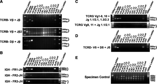 TCR and IGH rearrangement analysis in PBMC and CB iPSCs. a, PCR analysis of TCRB rearrangements. b, PCR analysis of IGH rearrangements. c, PCR analysis of TCRG rearrangements. d, PCR analysis of TCRD rearrangements. e, Specimen control. IVS-0000: polyclonal control DNA; IVS-0004, IVS-0021, IVS-0030: clonal control DNA; H2O: no template control; Buffy coat: genomic DNA from buffy coat PL#10