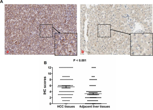 TIMP-1 expression is up-regulated in HCC tissuesA. TIMP-1 protein is mainly expressed in the cytoplasm of tumor cells, and TIMP-1 expression in HCC tissues was remarkably higher (a) compared with adjacent liver tissues (b). B. As shown in the vertical scatter plot, the IHC scores in the TIMP-1 high group (mean value: 5.57) was notably higher than that in the TIMP-1 low/non group with a mean value 3.28 (P < 0.001) after analysis by the Mann-Whitney U test.