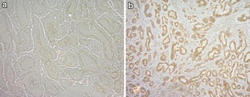 Immunohistochemical detection of ARF protein expression in a normal prostate tissue and b prostate cancer tissue scored as Gleason grade 9.