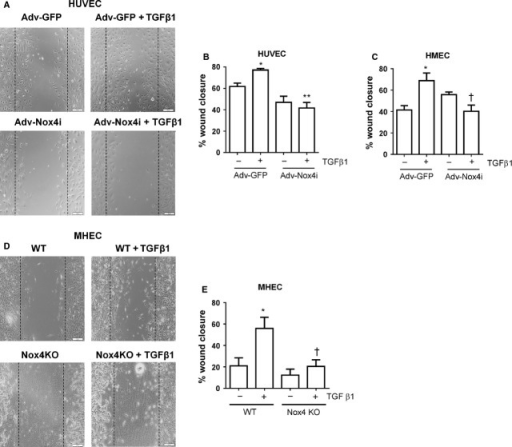 Nox4 is required for transforming growth factor-β1 (TGF-β1)-induced wound healing. Adv-Nox4i blunted the stimulatory effect of TGF-β1 (10 ng/ml) on wound healing response of (A and B) HUVECs and (C) HMECs. Similarly, TGF-β1 (10 ng/ml) induced wound healing response in wild-type mouse cells (WT), and this response was blunted in Nox4 KO MHEC (C and D). Representative high magnification images of a single wound-scratched healing assay performed on (A) HUVECs and (D) MHEC (scale bar represents 100 μm). Quantitative measures (mean ± SEM from n = 3–6) of wound healing responses are expressed as a percentage of cells infected with Adv-GFP controls or WT without TGF-β1 treatment. *P < 0.05 from Adv-GFP without TGF-β1 treatment; †P < 0.05 from Adv-GFP or WT treatment in the presence of TGF-β1.