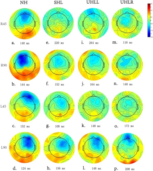 (Color Online) A topographic map based on the peak MMN responses of the subjects with different hearing abilities.