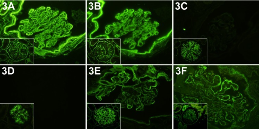 Immunofluorescence for several α(IV) chains in the glomeruli of the case and a normaldog (respective insets). α1(IV) and α2(IV) chains (A and B, respectively) were increasedin the GBM; α3(IV) and α4(IV) chains (C and D, respectively) were completely absent inthe GBM; α5(IV) and α6(IV) chains (E and F, respectively) were observed in both the GBMand Bowman's capsule BM. IF. ×400. Inset: expression pattern of respective α(IV) chainsin the normal glomeruli.