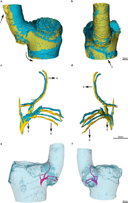 Quasi-3D data representation (3D models) of outer surface and single vascular bundles and their fibre caps within the branch-stem-attachment of Dracaena marginata individual DM10.The models of the unloaded ramification are coloured blue; those of the loaded condition of the same ramification are coloured yellow. (a,b) Overlay of the 3D models of the unloaded and loaded outer surface of the ramification. Injuries caused by the cable strap (arrow 1) and the plastic tip (arrow 3) of the experimental setup become visible. A slight twisting of the entire plant as the branch bends outward is indicated (arrow 2). (c,d) Models of single vascular bundles allow a detailed display and analysis of deformations. All vascular bundles are being bent downward. The displacements differ in their magnitude and are dependent on the location of the respective vascular bundle (arrows 4–6). (e,f) Spatial orientation of the unloaded vascular bundles.