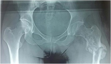 X-rays of the hip showing an osteolytic tumor at the site of the fracture (left side)