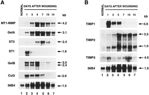 Northern blot analysis of MMP and TIMP RNAs during rat skin wound healing. Total RNA (10 μg) from normal skin (lanes  1) and skin wounds on days 1, 3, 5, 7, 10, and 14 after cutaneous incision (lanes 2–7), were electrophoresed, transferred to nylon membranes, and hybridized with 32P-labeled cDNA probes for rat MT1-MMP, GelA, ST3, ST1, GelB, Col3 (A); TIMP1, TIMP2, TIMP3 (B).  Blots were reprobed with the 36B4 cDNA used as a loading control (Masiakowski et al., 1982).