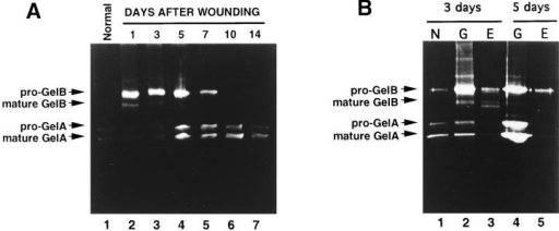 Gelatinolytic activities during rat skin wound  healing. Tissues were microdissected from cryostat sections, incubated with SDS  sample buffer, and subjected  to gelatin zymography. (A)  Normal skin containing both  epidermis and dermis (lane  1), and healing skin wounds  at days 1, 3, 5, 7, 10, and 14  after cutaneous incision  (lanes 2–7). (B) Normal skin  adjacent to the wound tissue  and containing both epidermis and dermis (N) (lane 1),  and granulation tissue (G)  (lanes 2 and 4) or proliferative epithelial layer (E) (lanes 3 and 5) of healing skin wounds at days 3 (lanes 2 and 3) and 5 (lanes 4 and 5)  after cutaneous incision. In A and B, proteins extracted from ∼1 mg of fresh tissue were analyzed in each lane.
