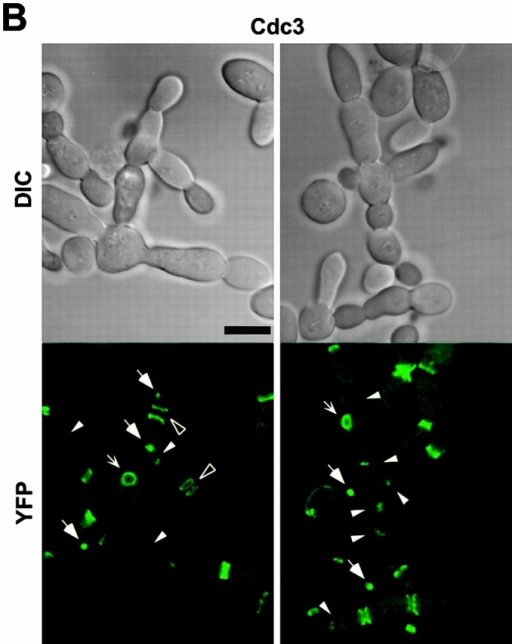 Direct interactions between cdc5ΔN and septins may lead to aberrant septin ring structures. Strain 1783 expressing a GST-cdc5ΔN under control of GAL1 promoter (KLY1053) were additionally integrated with TUB1-GFP (KLY1069), YFP-CDC3 (KLY1075), CYK2-GFP (KLY1071), or MYO1-GFP (KLY1073). These cells were cultured under the induction conditions for 12 h and subjected to microscopic examination. (A) Overexpression of GST-cdc5ΔN induces an apparent G1 arrest. Internal cell bodies possess disassembled spindles, whereas peripheral cell bodies possess elongated spindles, suggesting that only the cells at the edge continue to divide (see text). Bar: 5 μm. (B) Induction of various aberrant septin structures by overexpression of GST-cdc5ΔN. It appeared that a large fraction of septin double rings (visualized as YFP-Cdc3) were distantly placed from each other (open arrowheads) or that septin rings were disassembled with remnants of the YFP-Cdc3 signal present at the mother-bud neck (arrowheads). In addition, tiny septin ring structures (arrows) or abnormally large rings (barbed arrows) without an apparent bud formation were often present (see text for detail). Bar: 5 μm. (C) Two-hybrid interactions between Cdc5 and septins. Diagram shows structures of various Cdc5 constructs used in these analyses. To enhance the protein stability, a destruction-box–deficient form of Cdc5 (Song et al. 2000) was used in place of the wild-type Cdc5. Grey boxes indicate the kinase domain in the NH2 terminus of Cdc5. Closed boxes in the COOH-terminal domain indicate the polo-box, whereas the gray indicates the polo-box with FAA mutations. The numbers in the table indicate the Miller units of β-galactosidase activity averaged from two independent experiments. Cl, Cla I; RV, Eco RV; Sn, Sna BI; Cdc5, Cdc5 lacking the NH2-terminal residues 6–71 (Song et al. 2000); cdc5ΔC, COOH-terminal domain deletion; cdc5ΔN, NH2-terminal domain deletion; cdc5ΔN/FAA, NH2-terminal domain deletion with FAA mutations in the polo-box; a and b, control plasmids: pEG202-NLS (DNA binding domain fusion vector) and pJG4-5 (activation domain fusion vector). (D) Coimmunoprecipitation of cdc5ΔN with Cdc11. To examine in vivo interactions between cdc5ΔN and septins, cellular lysates (supernatant of 15,000 g; S15) were prepared from strains bearing CDC11-TEV-9myc at the CDC11 locus and expressing either GAL1-EGFP-cdc5ΔN (SKY1732) or GAL1-EGFP-cdc5ΔN/FAA (SKY1734). Cdc11 was immunoprecipitated with an anti–Myc antibody cross linked to sepharose beads. To elute Cdc11 and its associated proteins, immunoprecipitates were digested with TEV protease. The resulting eluates were mixed with Laemmli sample buffer and subjected to SDS-PAGE and Western blot analyses with either anti–GFP antibody or anti–Cdc11 antibody. To determine the efficiency of coprecipitation, a fraction of S15 before immunoprecipitation was also loaded. Due to the TEV cleavage, Cdc11 protein eluted from immunoprecipitates possesses a molecular size smaller than Cdc11-TEV-9Myc. cdc5ΔN, S15 lysates from SKY1732; cdc5ΔN/FAA, S15 lysates from SKY1734, S15, a fraction of S15 lysates; bead, anti–Flag antibody crossed linked to sepharose beads; anti–Myc, anti–Myc antibody crossed linked to sepharose.