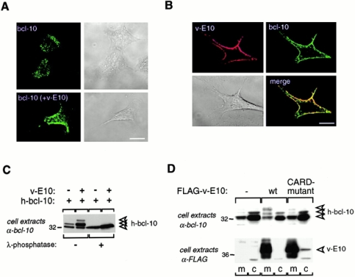 v-E10 induces hyperphosphorylation and plasma membrane recruitment of bcl-10. (A) Bcl-10 is localized in the cytoplasm of HeLa cells. HeLa cells were transfected with 0.5 μg of an expression vector for FLAG-tagged bcl-10 together with 4.5 μg of mock vector; the subcellular distribution of the transfected bcl-10 protein was analyzed by confocal staining using rabbit anti-FLAG antibody and Alexa-488–labeled anti–rabbit secondary antibody. (B) v-E10 and bcl-10 colocalize at the plasma membrane. HeLa cells were cotransfected with expression vectors for FLAG-tagged bcl-10 (0.5 μg), VSV-tagged v-E10 (2 μg), and mock vector (2.5 μg); the subcellular distribution of the transfected proteins was analyzed by confocal staining using rabbit anti-FLAG and mouse anti-VSV antibody followed by Alexa-488–labeled anti–rabbit and Cy5-labeled anti–mouse secondary antibody. (C) v-E10 induces hyperphosphorylation of bcl-10. HeLa cells were cotransfected with expression vectors for FLAG-tagged bcl-10 (1 μg) and VSV-tagged v-E10 (3 μg), and cell extracts of transfected cells were incubated for 1 h in the presence or absence of λ-phosphatase, as indicated. Cell lysates were analyzed by Western blotting using affinity-purified anti–bcl-10 antibody (AL114). Arrowheads indicate the migration position of the nonphosphorylated and the hyperphosphorylated forms of bcl-10. (D) v-E10 recruits hyperphosphorylated bcl-10 to the plasma membrane. HeLa cells were transfected with 3 μg of an expression vector for FLAG-tagged v-E10 and the subcellular distribution of the transfected v-E10 and the endogenous bcl-10 proteins was analyzed by cellular fractionation and Western blotting using anti-FLAG and anti–bcl-10 (AL114) antibodies, respectively. Bars, 10 μm.