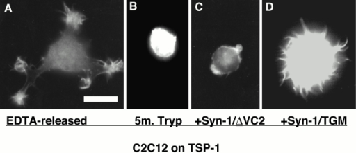 Role of endogenous syndecan-1 in fascin spike formation by C2C12 cells adherent on TSP-1. In a separate protocol, C2C12 cotransfected with Syn-1/ΔVC2 or Syn-1/TGM and EGFP-fascin expression plasmids were identified by EGFP-fascin expression after 1 h adhesion on TSP-1. Bar, 12 μm.