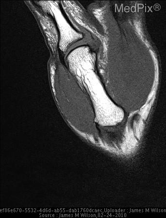 Ulnar Collateral Ligament Tear, Stener Lesion seen on dorsal aspect of metacarpophalangeal joint