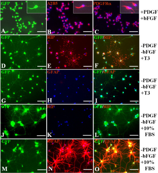Identification and differentiation of GFP-OPCs. The GFP-OPCs induced from spinal cord-derived NPCs were cultured in different media for 5 days. (A~C): In the basal-OPC-medium containing PDGF and bFGF, the cells display bipolar or tri-polar morphology, the typical morphology of OPC (A), more than 95% of cells express both A2B5 (B) and PDGFR (C). Inserts show higher power photographs of OPCs. (D~I) In the medium containing T3 and without PDGF and bFGF, the cells display a multipolar morphology (D, G), more than 95% of the cells express RIP (E, F), and almost no cells express GFAP (H, I).(J~O) In the medium containing 10%FBS without PDGF and bFGF, the cells display the typical process-bearing morphology of astrocytes (J, M), few cells express RIP (K, L) and nearly all cells express GFAP (N, O). Cells in B, C, E, F, H, I, K, L, N and O were counterstained with Hoechst33342 (blue), a nuclear dye. Scale bars: 25 μm.