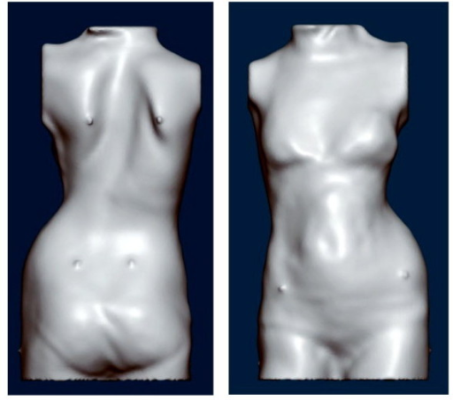Whole trunk scan of a patient with right thoracic scoliosis. The decompensation is clearly visible. To paste some markers on the trunk before the scan is taken makes it easier to identify special landmarks of the trunk while modifying the trunk model in the computer with the help of the CAD/CAM tools provided.