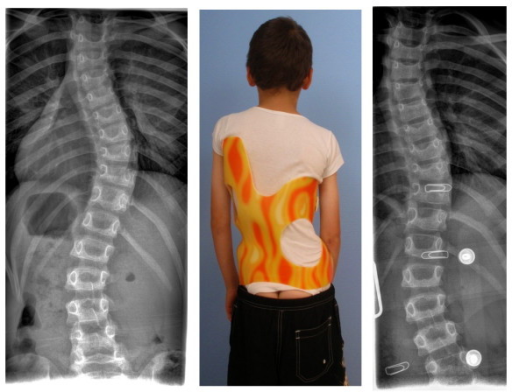 10-year old boy with EOS (early onset scoliosis) in his first Gensingen brace™. Clinically in this boy the flatback is clearly visible. The trunk is rather balanced because of the re-compensation of the 39° thoracic curve by a structural high thoracic counter curve. The curve is very stiff and has a bad prognosis, which can be estimated from the x-ray: In the apical area of the thoracic curve a significant wedging of the vertebra is visible. Nevertheless the curve has been corrected to 18° in the brace, which is sufficient considering the fact that double thoracic and EOS curves cannot be corrected as easy as single thoracic curves in patients with AIS. The foam pad location is marked on the in-brace x-ray with wire as is the longitudinal width of the thoracic pad.