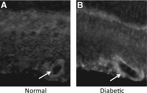 Cryosections of normal and diabetic rat retinas immunostained with anti-LOX primary antibody and rhodamine-conjugated secondary antibody. Blood vessel in the diabetic retina shows increased LOX immunostaining compared with those of the normal retina.