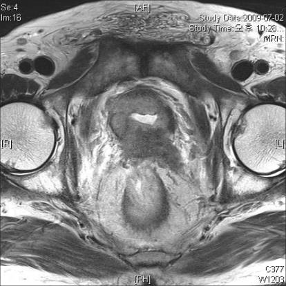 Penetration of fluoroquinolones into prostate STUNNING VERY