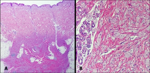 (A) Tumor ill-defined in dermal-hypodermal junction and subcutaneous fat. (Haematoxylin-eosin, original magnification: x 40); (B) Nests and sheets of cells containing eosinophilic cytoplasmic granules (haematoxylin-eosin, original magnification: x 200).
