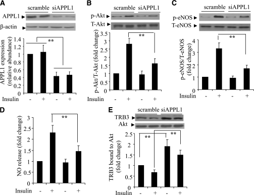 Effects of siRNA-mediated knockdown of APPL1 on insulin-induced Akt signaling and NO production in HUVECs. Cells were transfected with siRNA specific for APPL1 (siAPPL1) or scrambled control for 40 h, followed by serum starvation for 6 h and stimulation with insulin (50 nmol/L) for 10 min. The expression of APPL1 (A), phosphorylation of Akt at Thr308 (B), and phosphorylation of eNOS at Ser1177 (C) were determined by Western blotting. NO release in the conditioned medium was measured at 60 min after insulin treatment. The data were expressed as the fold over the control cells treated without insulin (D). E: Cells were cotransfected with siAPPL1 or scrambled control plus a plasmid encoding HA-tagged Akt, followed by insulin treatment as above. Cell lysates were subjected to immunoprecipitation with anti-HA antibodies and then probed with anti-Akt or anti-TRB3 antibody as indicated. T, total; p, phosphorylated. **P < 0.01 (n = 5–6).