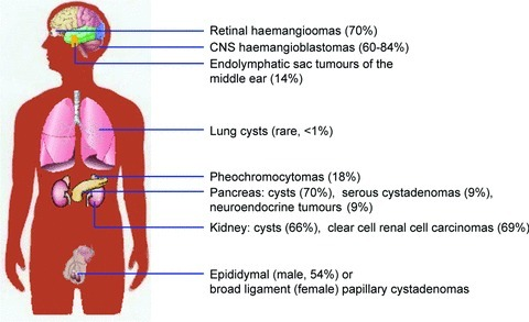 symptoms and treatment of the von hippel lindau syndrome vhl Von hippel-lindau syndrome is an inherited disorder characterized by the formation of tumors and fluid-filled sacs (cysts) in many different parts of the body tumors may be either noncancerous or cancerous and most frequently appear during young adulthood however, the signs and symptoms of von.