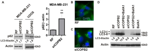 COPI depletion induces abortive autophagy.(A) Indicated cancer cell lines were treated with control siRNA (RF) or COPB2 siRNA for 72 h and p62 level was analyzed by immunoblotting. Quantification of p62 protein levels is shown as the mean ± SD from four independent experiments. **, p<0.01. (B,C) MDA-MB-231 cells were treated as in (A) and p62 was analyzed by immunofluorescence microscopy. (D) COPB2 or COPG2 depleted MDA-MB-231 cells were analyzed for LC3 accumulation in the absence or presence of 50 nM BafA1.