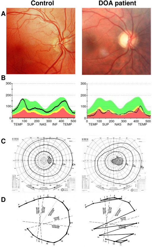 Ophthalmological description of a DOA patient. Results from ophthalmological examination of a paradigm Dominant Optic Atrophy patient with the c.2708delTTAG mutation in OPA1 (Right) compared to a control patient (Left). (A): Eye fundus examination showing the pallor of the optic nerve in the DOA patient, in particular on the temporal side, whereas the rest of the retina appears totally unaffected. (B): Optical Coherence Tomography measures of the retinal nerve fiber layer thickness (black line), at the emergence of the optic disc. In a DOA patient, there is a general reduction in all quadrants, prevailing on the temporal side, compared to a control patient. (C): Visual field examination disclosing the caeco-central scotoma in the DOA patient, whereas only the blind spot is detected in control patient. (D): Results from a desaturated 15-Hue test presenting the characteristic tritanopia (blue-yellow axis) dyschromatopsia defect in the DOA patient.