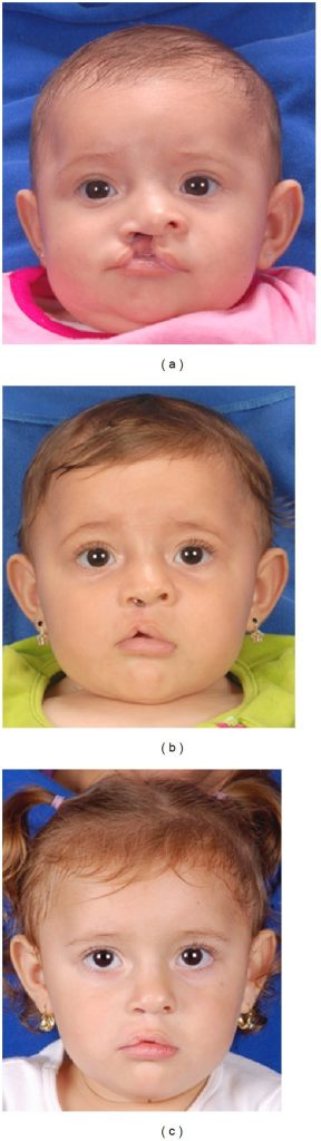 (a) A 3-month-old, complete cleft patient who underwent a cleft lip repair using the Cutting extended Mohler technique. (b) The initial result at T1 showing the pull up of Cupid's bow, owing to the scar contraction in this period of time. (c) The T2 result shows a better positioning of Cupid's bow and satisfactory lip height in the cleft side.