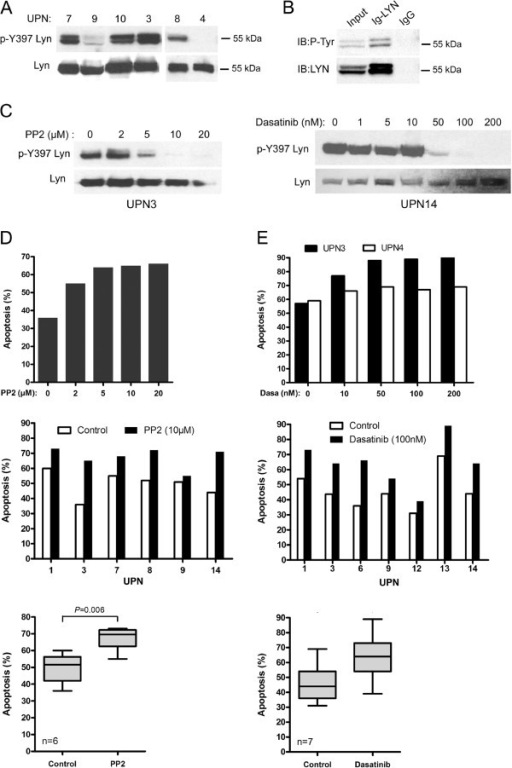 PP2 and dasatinib inhibit constitutive phosphorylation of LYN and induce apoptosis of primary MCL cells. (A) Constitutive phosphorylation profiles of LYN in MCL patients' samples. Phospho-Tyr397 LYN was detected using a pan phospho-src family antibody. The blots were stripped and re-probed for total LYN. (B) Total proteins from HBL-2 cells were immunoprecipitated with an anti LYN antibody (Ig-LYN) or with an irrelevant IgG control and immunobloted (IB) with either an anti-phosphotyrosine antibody (P-Tyr) or an anti-LYN antibody. (C) Primary MCL cells (UPN3, UPN14) were treated with variable concentrations of PP2 (2 to 20 μM) or dasatinib (1 to 200nM) for 2 h. Phospho-Tyr397 LYN and LYN total were analyzed by western-blot. (D) Primary MCL cells were treated with various concentrations of PP2 (UPN3, top panel) or 10 μM of PP2 (UPN 1–3-7–8-9–14, middle panel) for 24 h and apoptosis was measured by flow cytometry after gating on CD19+ cells. All measurements were done in duplicate and the mean is provided. Results are also shown as median ± quartile (box) ± SE (bars) bottom panel). Differences between groups were determined using the paired Student t test. (E) Primary MCL cells were treated with dasatinib for 24 h with various concentrations (top panel) or with 100nM (middle panel). Apoptosis was measured as described above. Results are also shown as median ± quartile (box) ± SE (bars) bottom panel).