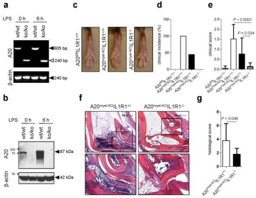 Il1r1-deficiency rescues the arthritis phenotype of A20myel-KO micea, b, A20 and β-actin mRNA (a) and protein (b) levels of LPS-stimulated BMDMs. c, Hind paws of 20 weeks old mice. d, e, A20fl/flIL1R1+/+ (n=19), A20myel-KOIL1R1+/+ (n=8), A20myel-KOIL1R1+/− (n=15) and A20myel-KOIL1R1−/− (n=9) mice aged 21-30 weeks were clinically scored for arthritis incidence (d) and severity (e). f, Ankle joints sections stained with haematoxylin and eosin; magnification: 40× (top) and 100x (bottom). g, Histological scores of ankle sections of A20myel-KOIL1R1+/− (n=10) and A20myel-KOIL1R1−/− (n=8). P-values in e and g were determined by Student's t-test.