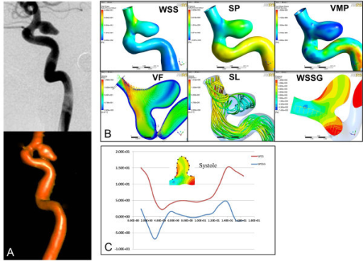 Hemodynamic analyses of the RPcomAA at the aneurysm status. A, Two-dimensional-DSA and 3D-DSA reconstruction images of the RPcomAA. B, Hemodynamic analyses in terms of WSS, pressure, velocity field, streamlines, and WSSG show elevated WSS and low pressure at the distal aneurysm neck, and decreased WSS and elevated pressure at the aneurysm dome. A complex blood flow pattern is observed in the aneurysm sac with a narrowed inflow jet and impaction zone. C, Quantification along the longitudinal section of the aneurysm wall shows significant changes in the distribution of WSS and WSSG at the peak of the systolic period. WSS, wall shear stress; P, pressure VMP, von Mises pressure; VF, velocity field; SL, streamlines; WSSG, wall shear stress gradient.