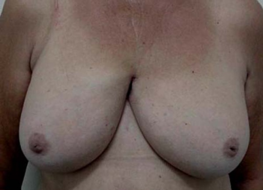 Lesion in retracted hardened plaque in intermammary region