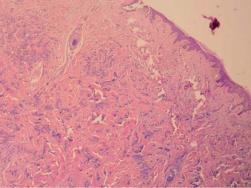 Histopathology of cutaneous lesion suggesting poorly differentiatedadenocarcinoma