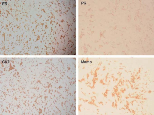 Immunohistochemist ry of cutaneous lesion showing diffuse positivity for estrogenreceptors (ER), progesterone receptors (PR), cytokeratin 7 (CK7) and Mammoglobulin(Mammo)