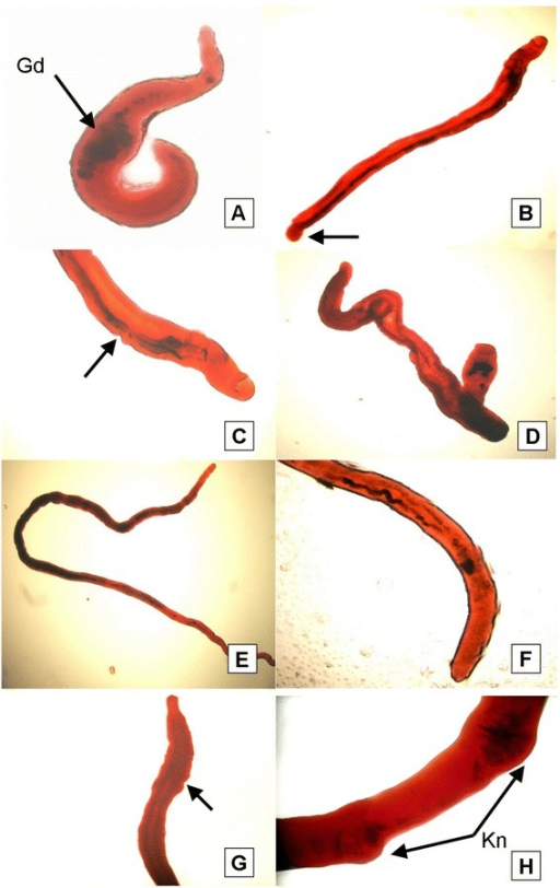 Light microscopic appearance of carmine-stained adult worms recovered from FSm14/29-immunized mice. (A) Abnormally shortened adult male worm exhibiting multiple gut dilatations (Gd). The testes were not clearly seen due to dilatations of the gut in the anterior part of the worm. (B) Slightly elongated male with bulging (arrow) in the posterior end. (C&D) Male worm demonstrating gut dilatation which hides the appearance of the testes, with ill-defined oedematous suckers, and remarkable tegumental irregularities in the worm outline. (E) An example of an elongated female. (F&G) Posterior ends of females possessing universal pronounced tegumental oedematous irregularities (arrows) or even wrinkled posterior ends. (H) Occasional swollen knots (Kn) in a female mid-body. Sparseness of the pigment content of the gut was noticed in all examined female worms with indistinct vitelline gland lobulations and ill-defined ovarian boundaries.